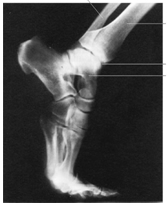 X-Ray Ankle Fairfax County VA Walk in Medical Care